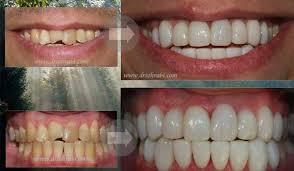 دانلود مقاله درمورد کامپوزیت های دندانی